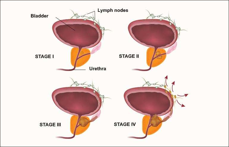 four degrees of prostate cancer